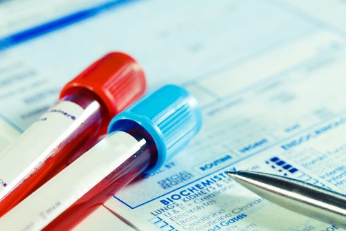 What Prosecutors Must Prove If You Have a DWI Blood Test